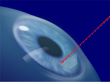 Click to enlarge photo of IntraLase All-Laser No-Blade LASIK Surgery Flap Creation
